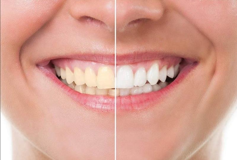 سفیدی دندان و مراقبت از آن